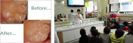 치아홈메우기 사업 이미지